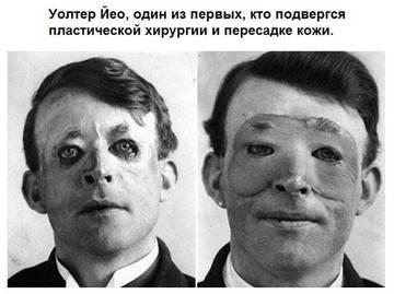 http://s0.uploads.ru/t/ETmFX.jpg